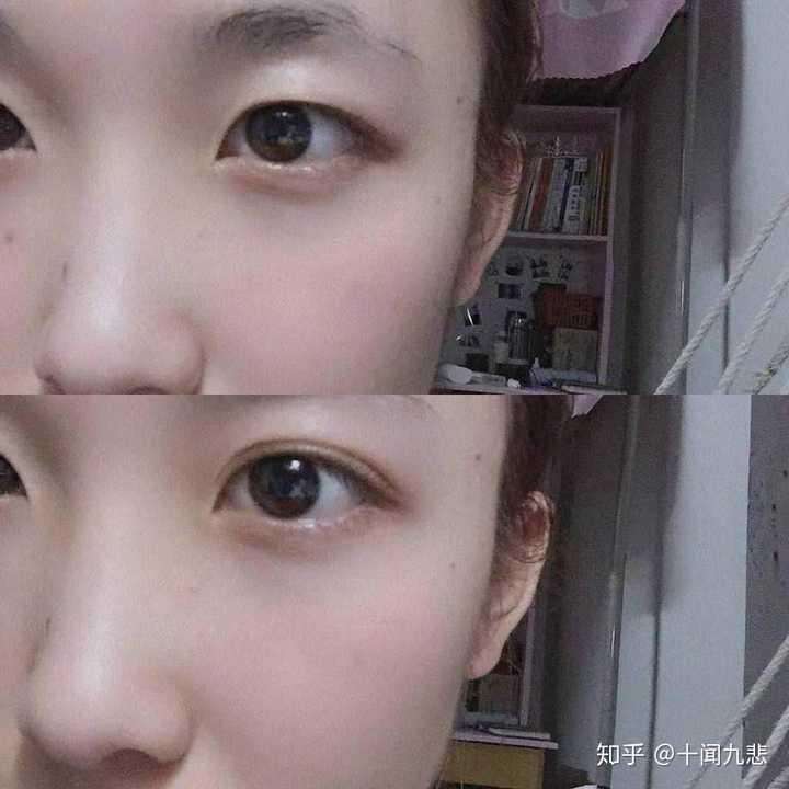 怎么从单眼皮自然变成双眼皮?图片