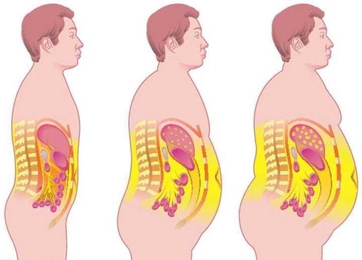 人体脂肪_我统一说一下:会反弹! 虽然人体的脂肪细胞数量是固定的.