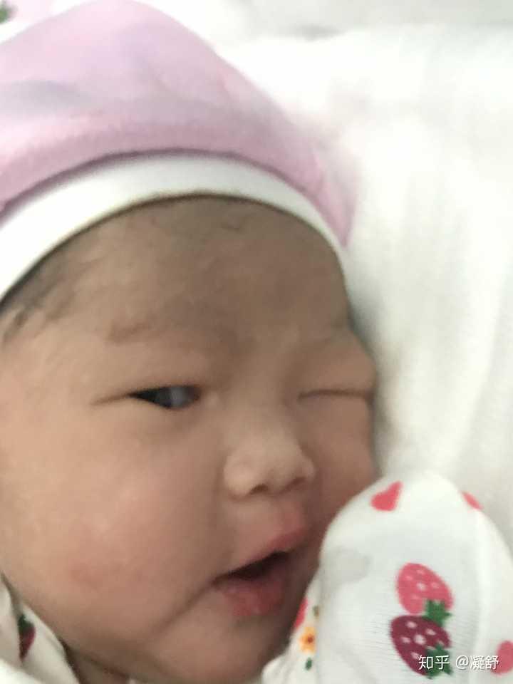 宝宝出生的时候眼睛就睁开了,还睁得挺大的.图片