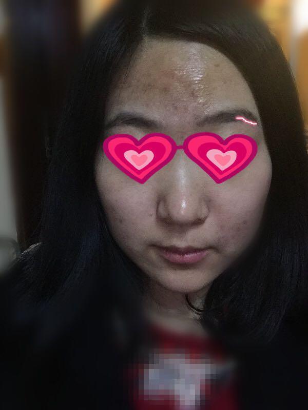 本人动漫脸上长很多痘,?-王山而的回答森女生女生系图片图片