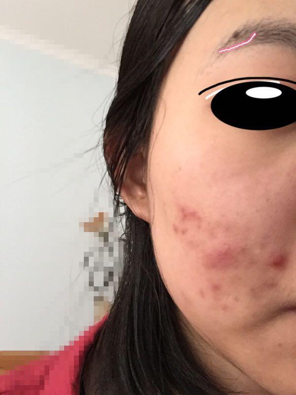 本人女生脸上长很多痘,?-王山而的回答女生拽qq超拽网名图片