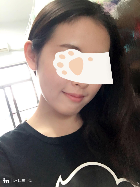 本人用户脸上长很多痘,?-匿名女生的回脚吧舔女生图片