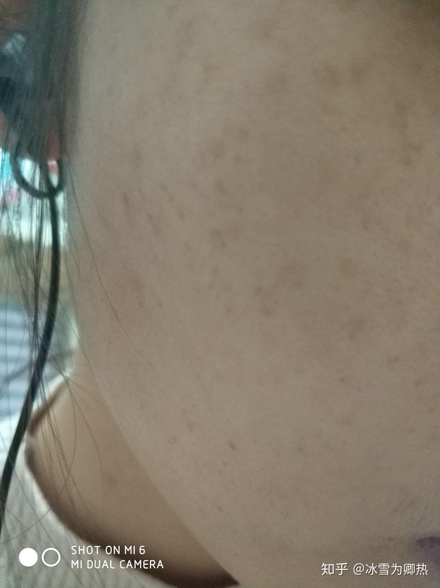 亲们有谁有过激光祛斑的经历?本人有雀斑一直困扰,想要去激光祛斑,但担心会反弹一直不敢去做。求解?相关的图片