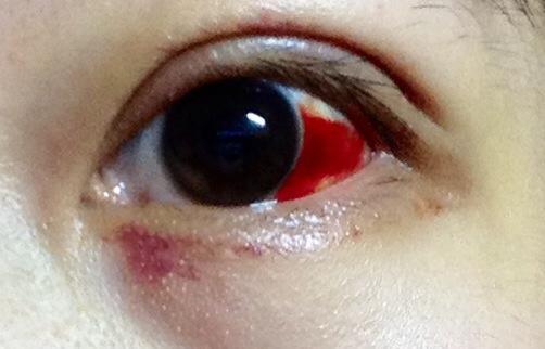 眼球出血_白眼球\