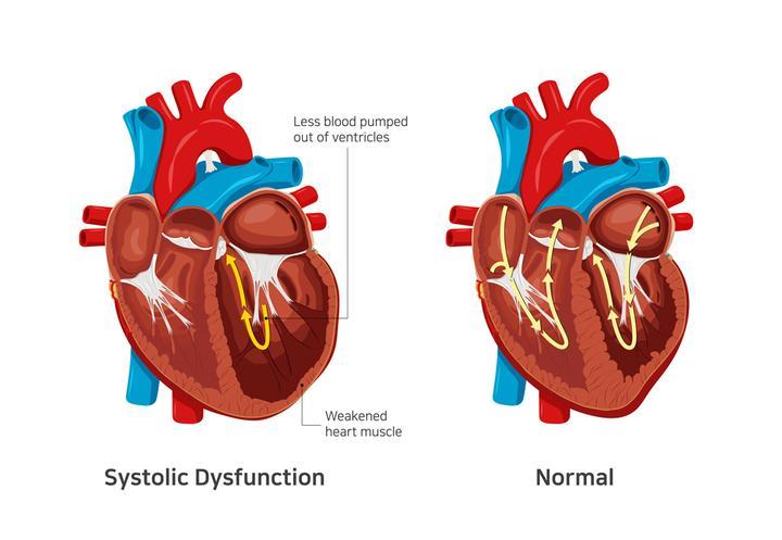 左边为扩心病收缩障碍的心脏示意图,右边为正常心脏示意图