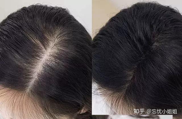 方法用的对,脱发都能调理好,我的生发成功经验总结