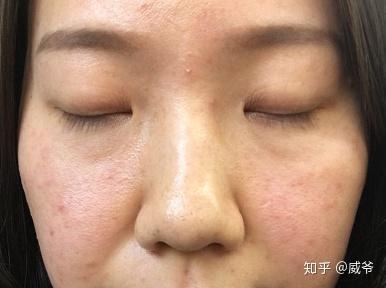 此时同事又跟我说我的皮肤应该是激素脸,所以把底层的激素给排出来了图片