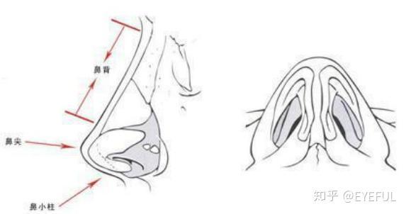 隆鼻假体 外露的反应