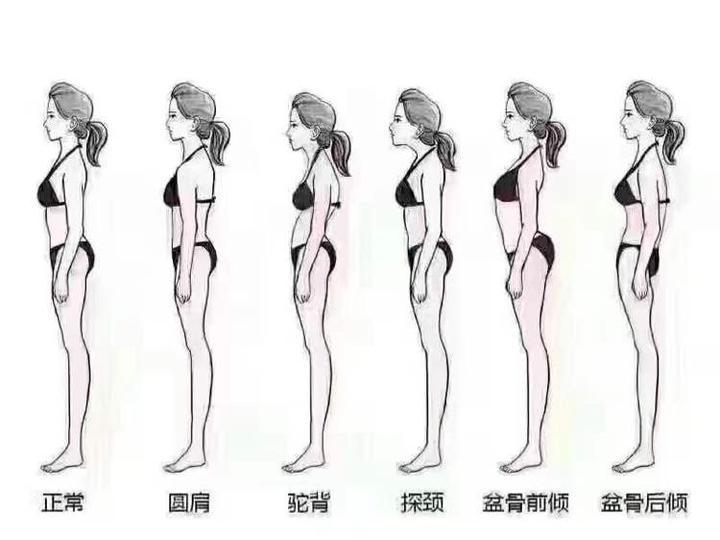 女生肩膀的上斜方肌太粗壮了怎么办?
