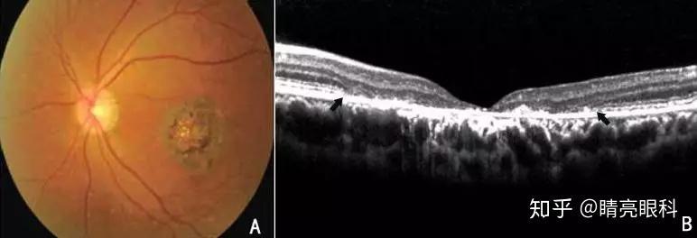 色素紊乱; 图b:oct:显示视网膜神经上皮层变薄,近中心凹处椭圆体带