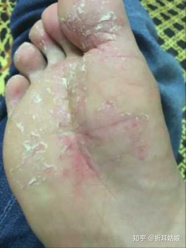脚气病怎么治_初级轻度脚气怎么治? - 知乎