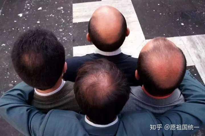 植发手术值得做吗?