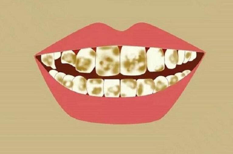 进口牙膏哪个牌子好?