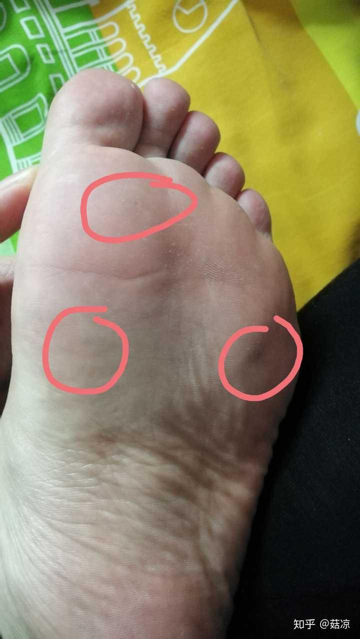如何去除腳底上的疣圖片