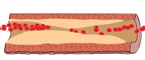 血管堵塞的4大诱因值得深思