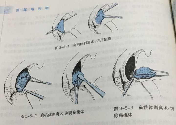 扁桃體結石是如何形成的?圖片