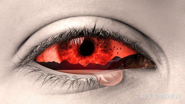 出血 眼底