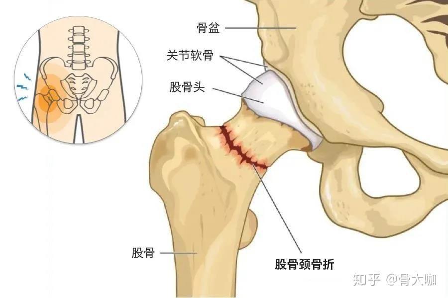 部 頸 骨折 骨 大腿