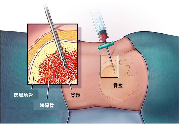 穿刺活检会引起癌症扩散或转移吗?