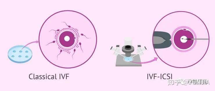 为什么精液检查结果每次都不一样?