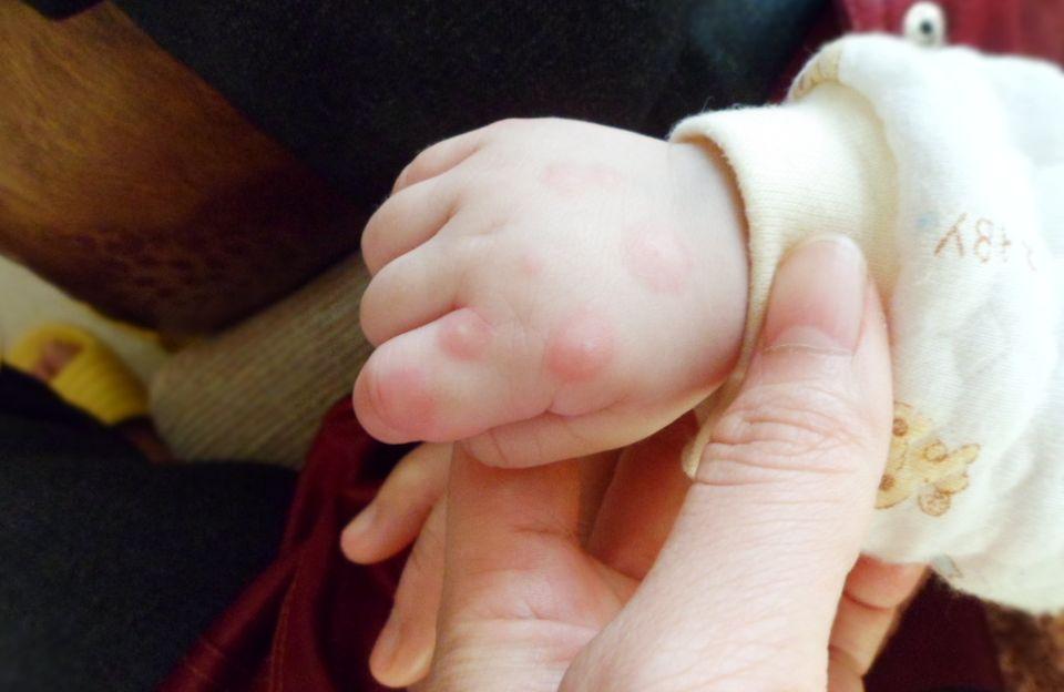 手足 口 病 初期 症状