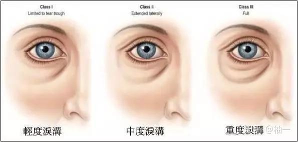 拿掉滤镜,比黑眼圈眼袋更可怕的是泪沟和法令纹!(图12)