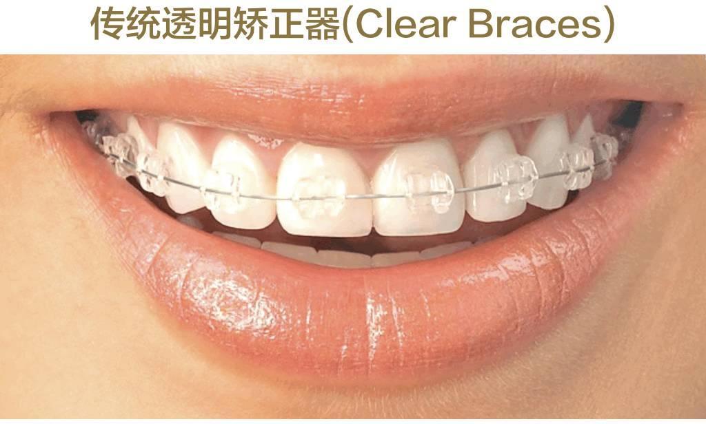自锁托槽图片_关于牙齿矫正值得知道的一切 | 女神进化论 - 知乎