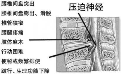 腰椎间盘突出的原因_坐骨神经痛的症状有哪些? - 知乎