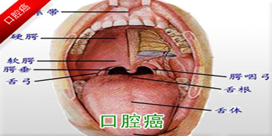 初期 症状 癌 舌