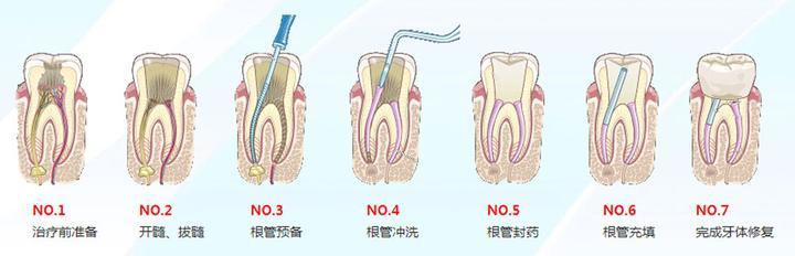 如何从小到大保护好牙齿?