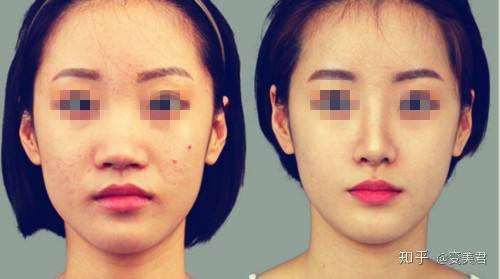 自己注射玻尿酸隆鼻_玻尿酸隆鼻攻略,术前必须知道的5件事,你知道吗? - 知乎