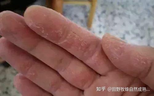 手裂解蜂蜜吗?好吗?