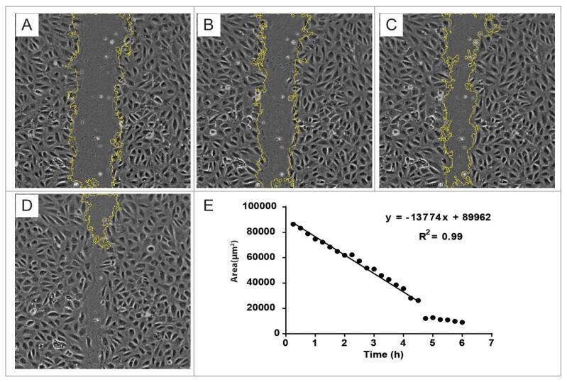 ImageJ实用技巧——细胞划痕实验分析(插件篇)