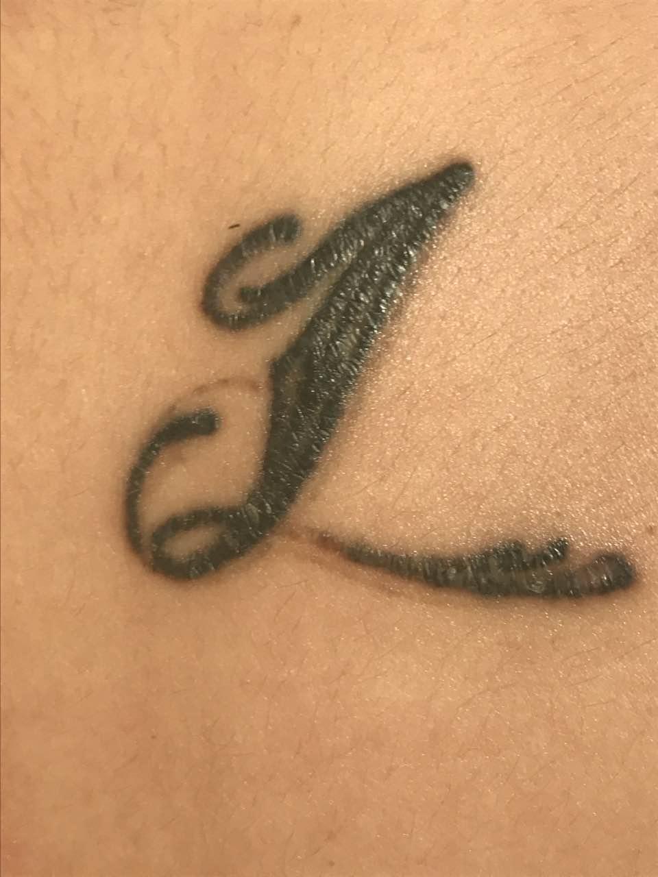 纹身洗掉后的疤痕图片_带你逆袭的阿琪_新浪博客
