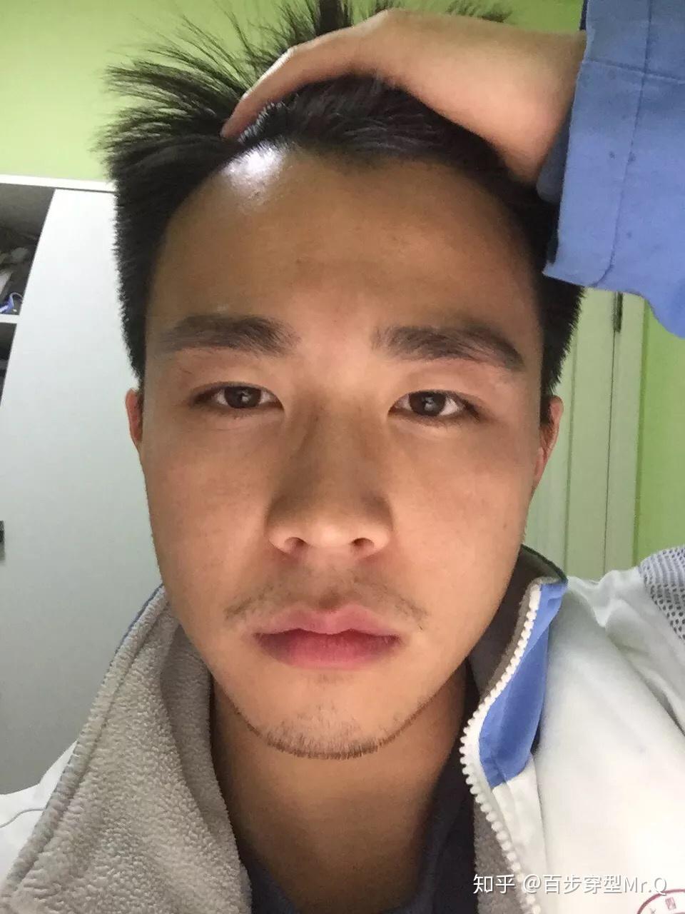 男人的粗黑硬_发际线很高的男人适合什么样的发型? - 知乎