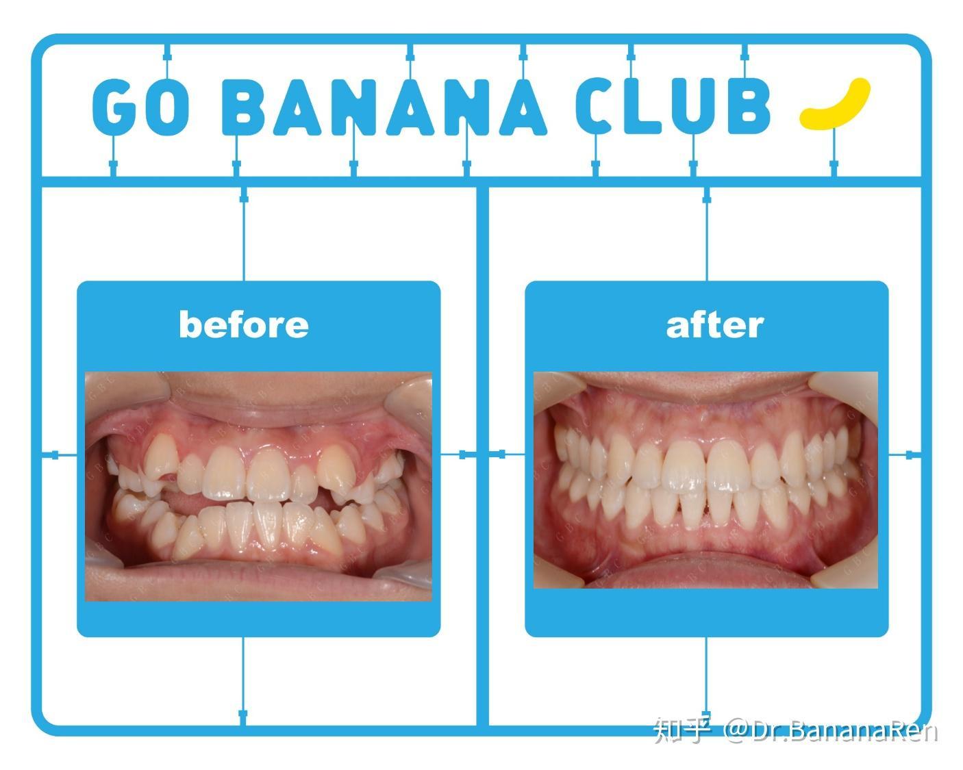 牙齿矫正前后对照图_广州美莱医疗美容