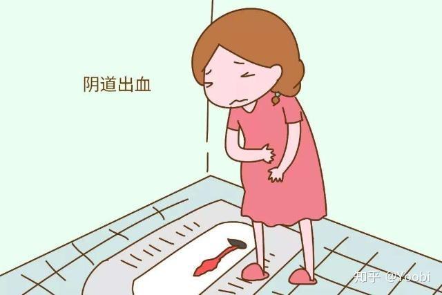 孕期鼻子出血怎么回事_怀孕初期白带褐色!这是怎么回事? - 知乎
