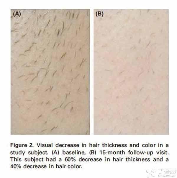 1.激光脱毛是怎么实现的?