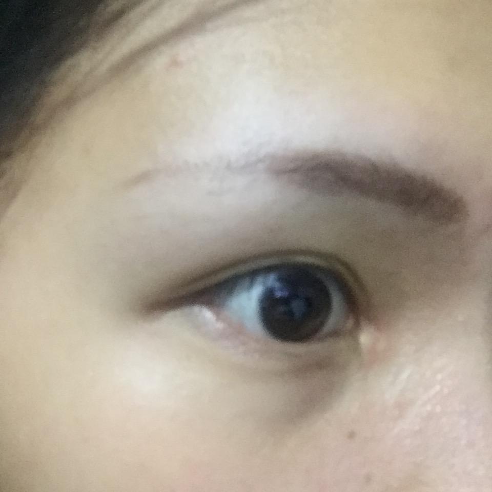 双眼皮手术后开眼角_开眼角有什么后遗症? - 知乎