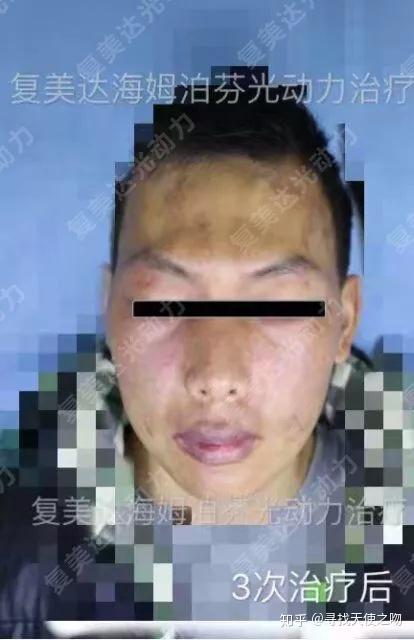 光动力鲜红斑痣_既往做过多次激光治疗无效,右眼由于鲜红斑痣已经失明 3次光动力治疗
