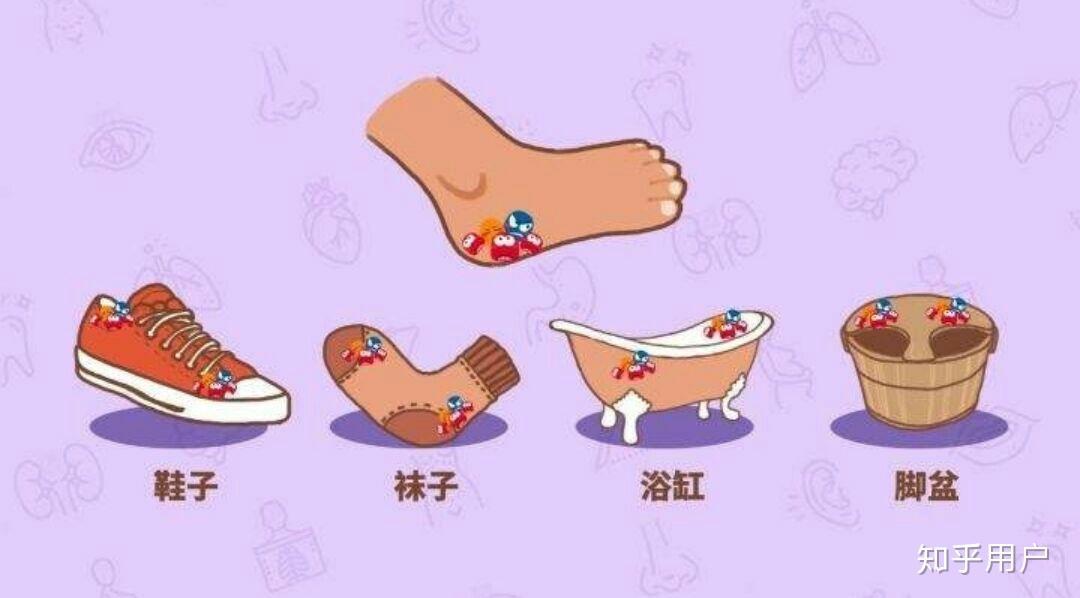 引起灰指甲的原因_我想知道长脚气是什么原因引起的? - 知乎