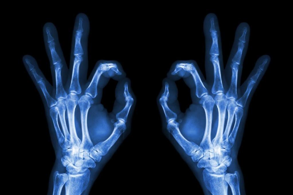 现代医学成像(2)——X射线成像