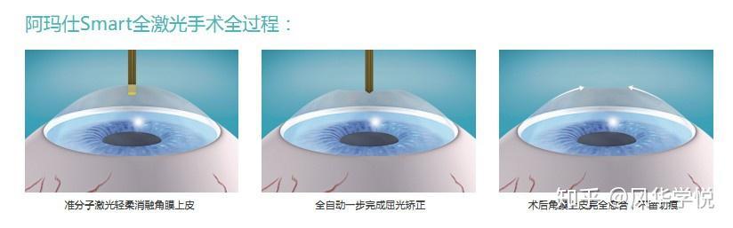 近视眼准分子激光手_眼睛近视激光手术一般要多少钱? - 知乎