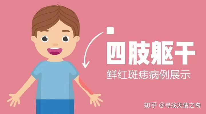 光动力鲜红斑痣_复美达光动力治疗鲜红斑痣疗效展示