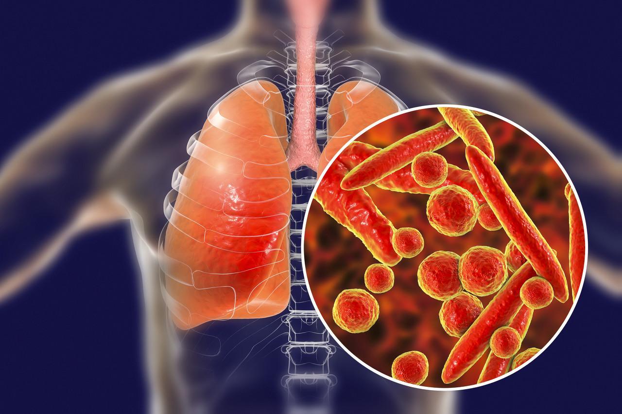 科普   武汉不明原因肺炎诊断患者增至 59 例,这 7 个问题你要知道