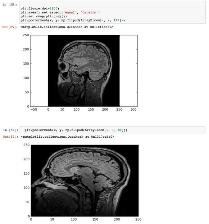 Python之深度学习分析医学图像实战基础I - 知乎