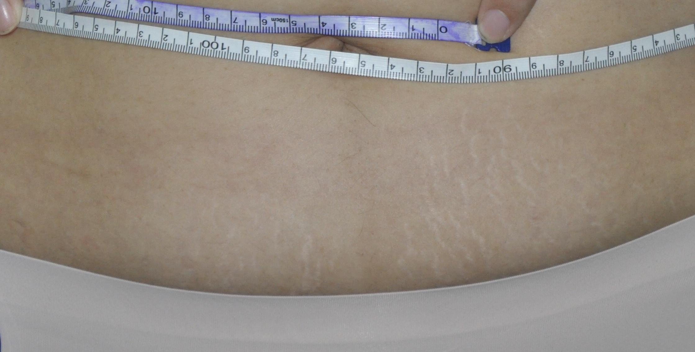 肥胖纹和萎缩纹_令人烦恼的妊娠纹 - 知乎