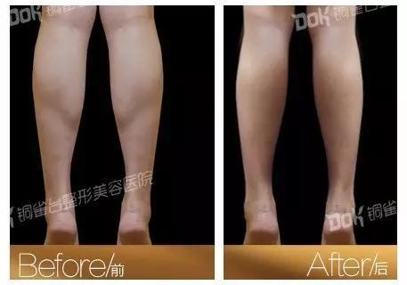 学生瘦腿方法3天见效_有什么方法可以瘦腿_学生瘦腿方法3天见效_学生瘦腿方法1天见效 ...