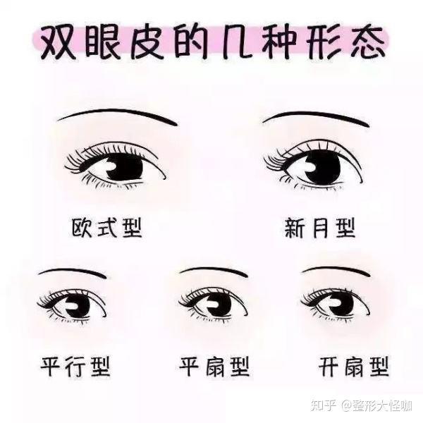 双眼皮去多类型