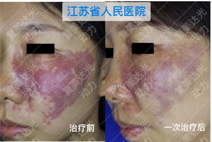 光动力鲜红斑痣_疗效点评:经海姆泊芬光动力治疗一次后鲜红斑痣范围缩小,皮损颜色显著